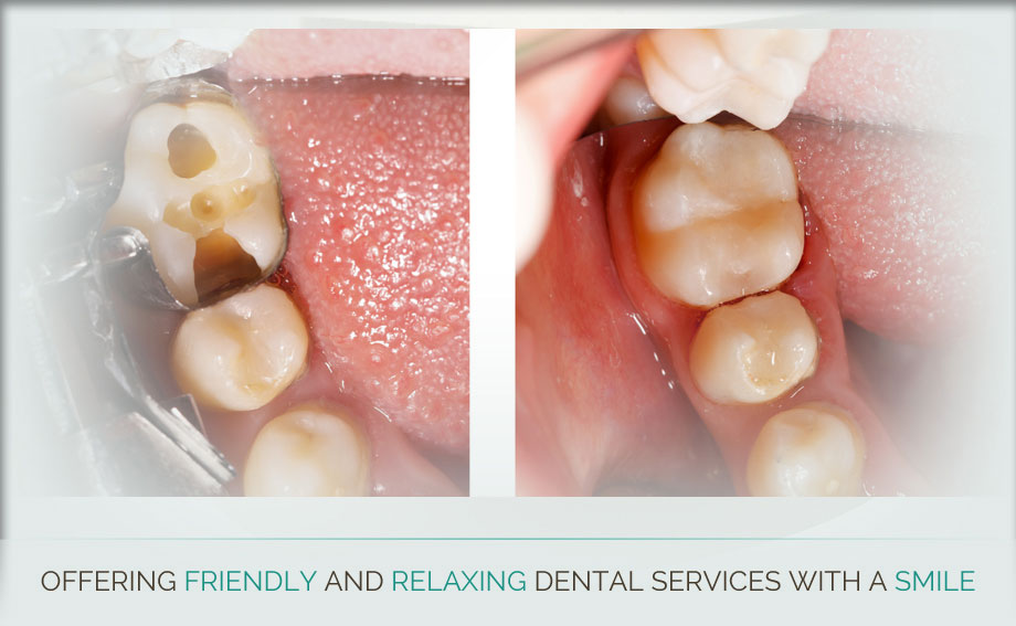 Thunder Bay Dentist - Slide 13